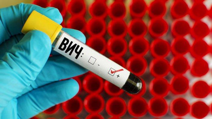 Умышленное заражение ВИЧ-инфекцией: классификация и ответственность